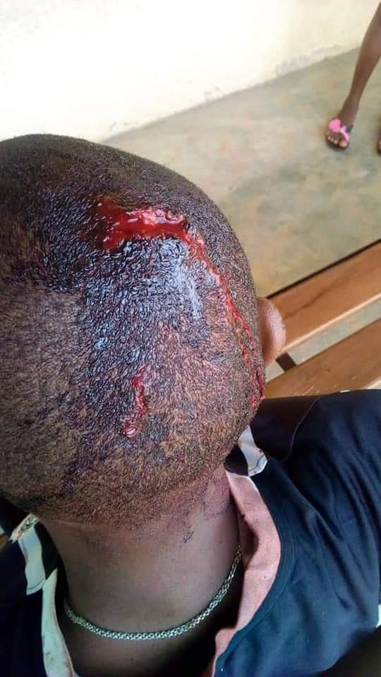 A Nigerian man identified as Sagacious took to Facebook to share the story of how he was assaulted today by police and wrote.. 'The Nigerian Police brutality continued on Nigerians citizens just today again in Owhelogbo Junction,Ozoro,Isoko North,Delta state . they abused,brutalized and assaulted me using the but of their rifles leading to my sustaining deep cuts in my head . I am presently admitted in Ozoro general Hospital . The Police team is led by one Nelson whose other name I cannot recall but with the force number 444916. the Mobile Police Personnel attached to AGIP before proceeding to the flow station in Isoko South carried out this unjustified abuse on my right as a law abiding citizen. The reason for the assault was simply because I asked them to give access to vehicular movement that their own vehicles were obstructing. I have made a formal complaint to the Ozoro Division of police for investigation.'